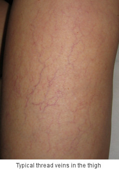 what are thread veins